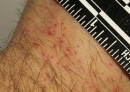 Bettwanzenbekämfpung Bettwanze bekämpfen Wanze Schädlingsbekämfpung Kammerjäger Allessauber